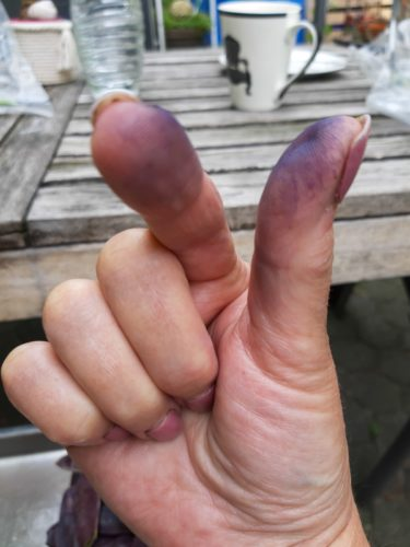 Verfärbte Finger